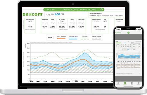 dexcom-monitor-1